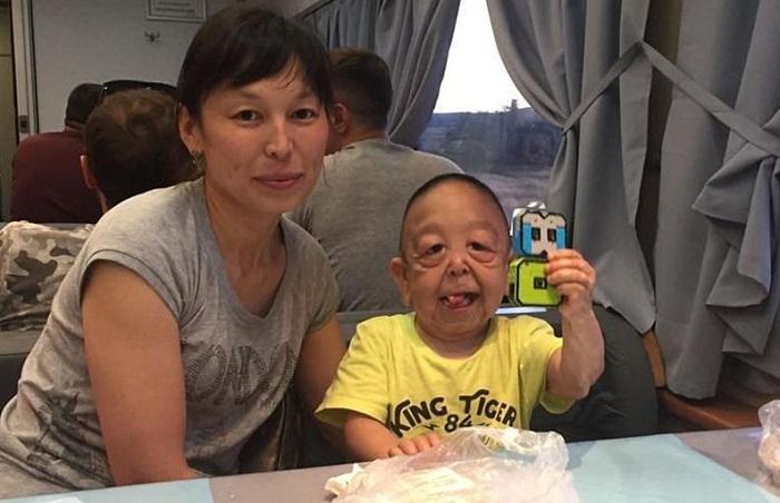 Казахстанскому Бенджамину Баттону сделали операцию в Алматы