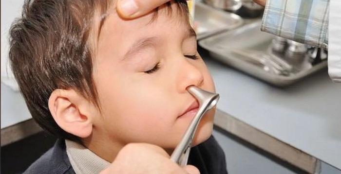Хирурги Астаны показали коллекцию извлеченных предметов из детских органов