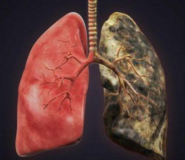 Рак легких лидирует среди онкозаболеваний в ЗКО