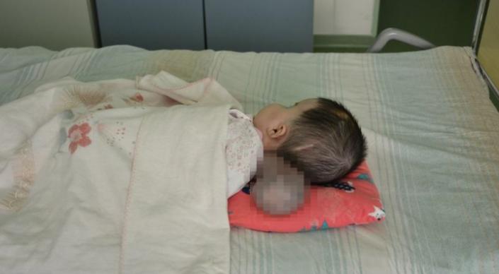 Двухмесячному ребенку удалили огромную грыжу головного мозга в Нур-Султане