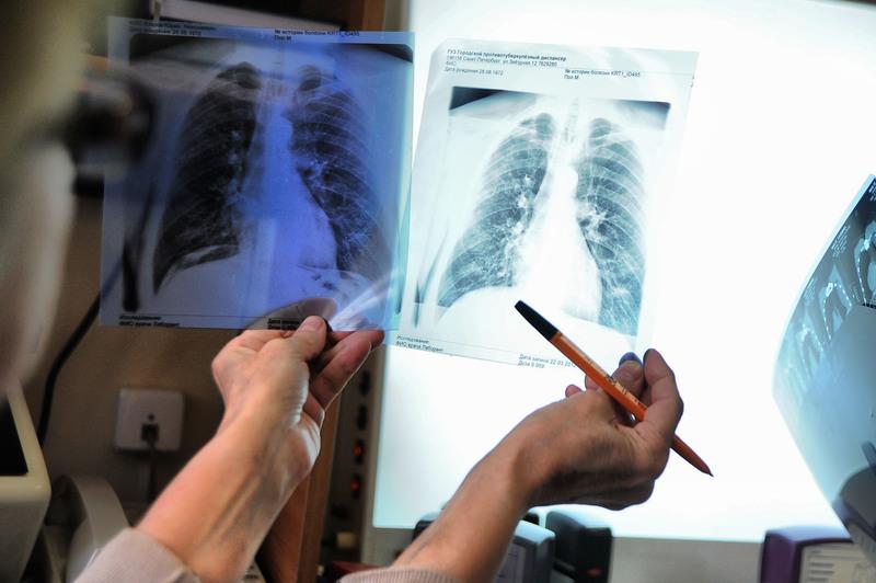 Более 500 человек заражены туберкулезом в Нур-Султане – пациентам необходим новый вид помощи