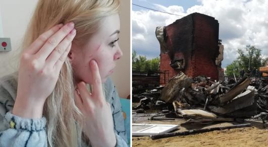 Девушка рассказала о своем состоянии после взрыва в Костанае