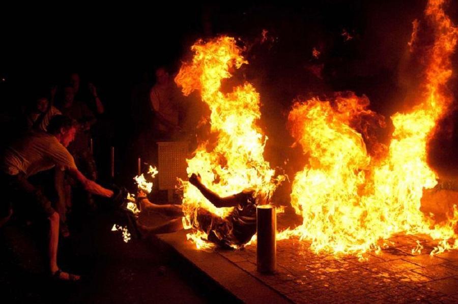Сожженная мужем женщина пришла в себя в Нур-Султане