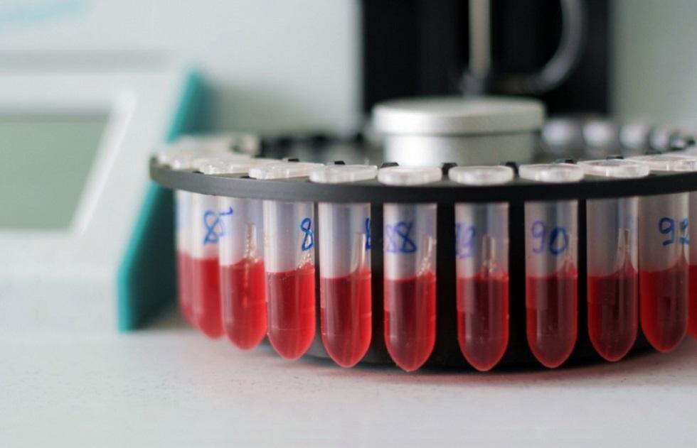 6 центров трансплантологии проверены в Казахстане из-за возможного заражения ВИЧ