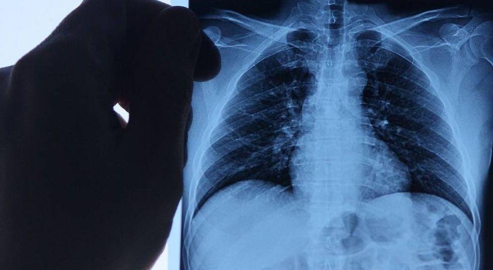 Вспышка пневмонии в Китае: минздрав обратился к казахстанцам