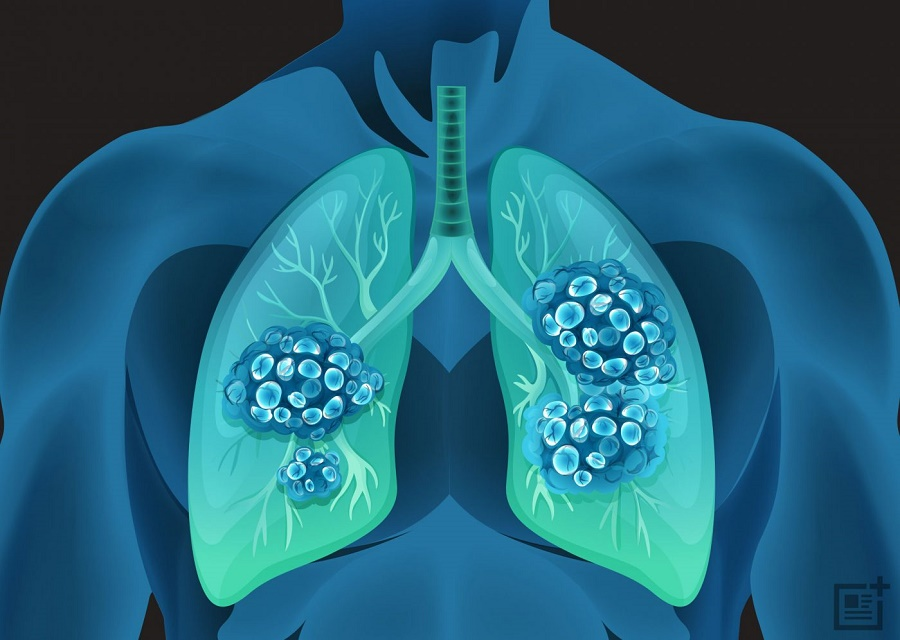 Дүниежүзілік денсаулық сақтау ұйымы Қытай пневмониясы туралы ескерту айтты