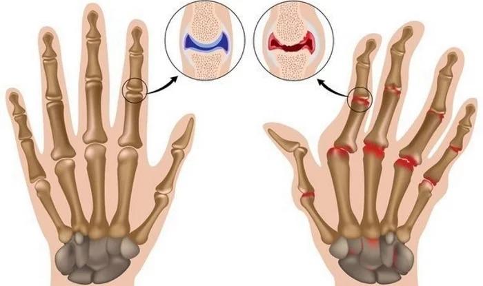 Чем опасна привычка хрустеть пальцами?