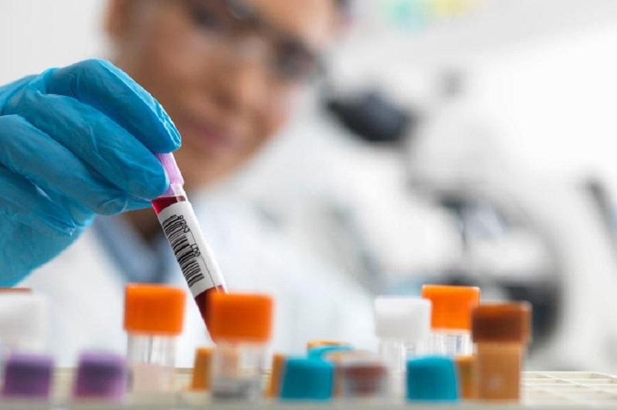 Где в Алматы делают тест на коронавирус