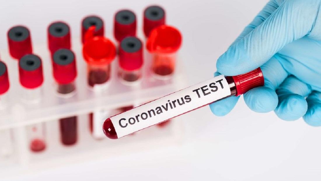 435 человек заражены COVID-19 в Казахстане