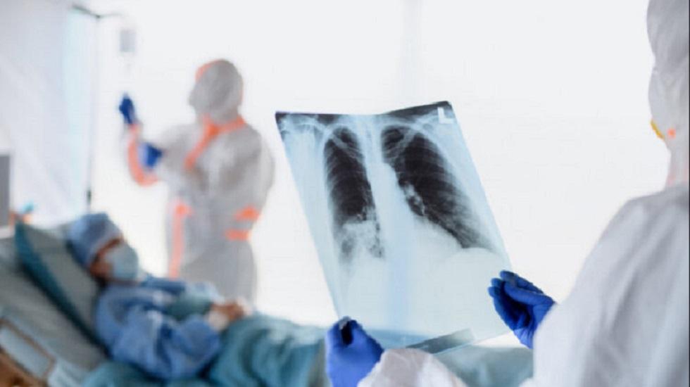 За прошедшие сутки от пневмонии скончались 3 казахстанца