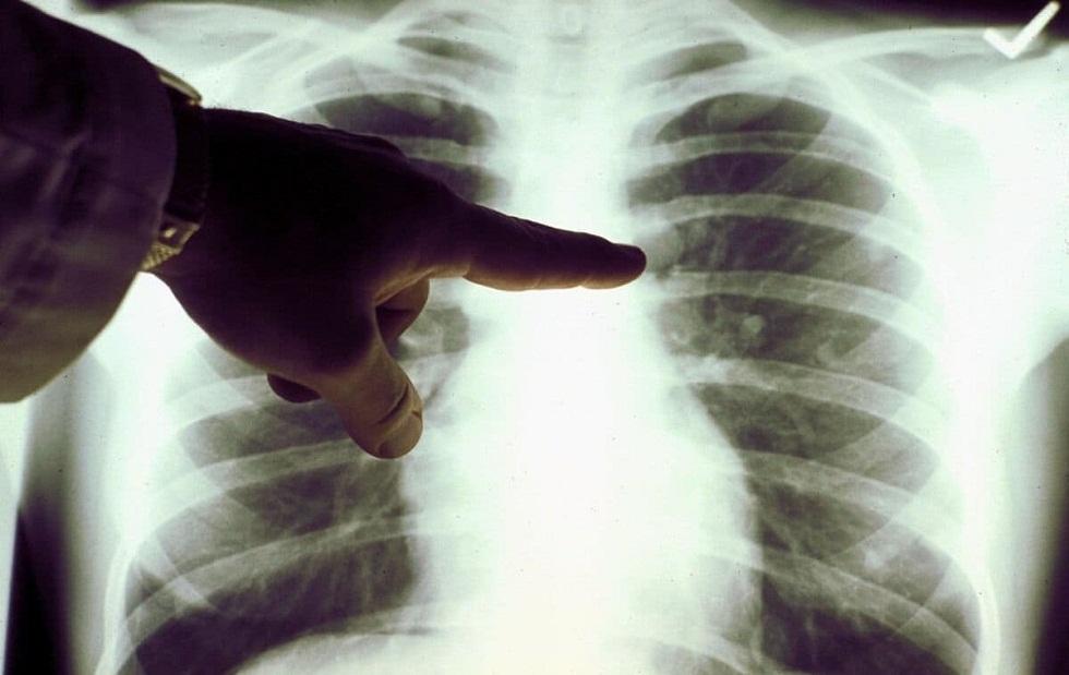 Еще 4 человека скончались от коронавируса и пневмонии в Казахстане