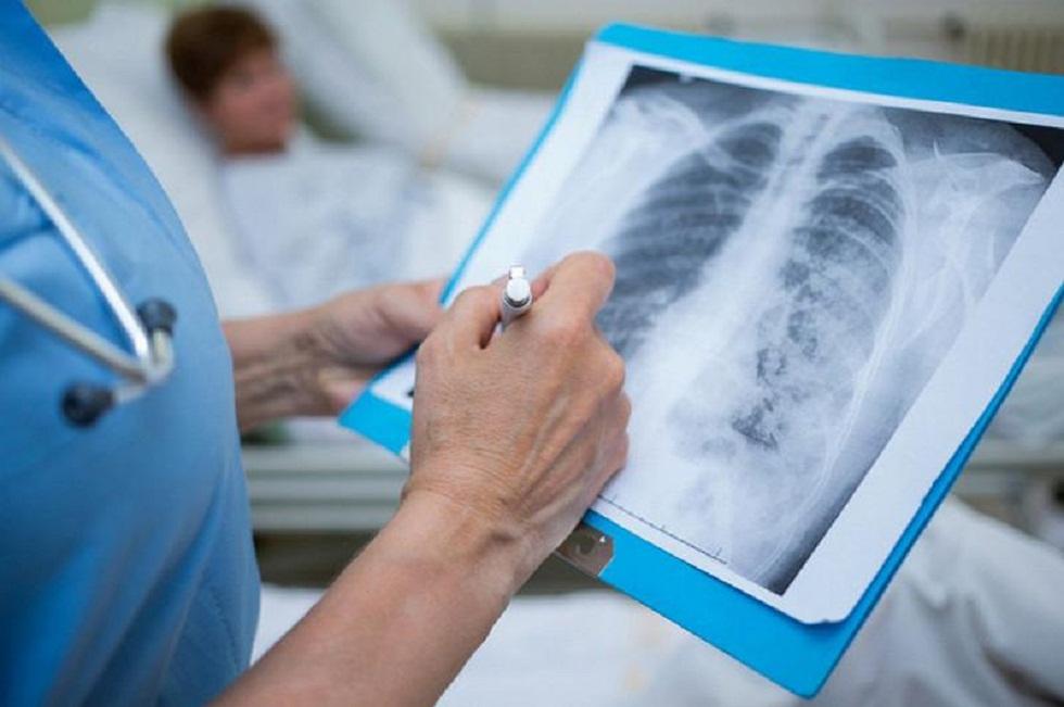 Өткен тәулікте Қазақстанда 234 адамнан пневмония анықталып, 2 адам қайтыс болды