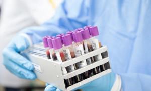 COVID-19 в Казахстане: темпы распространения вируса продолжают расти