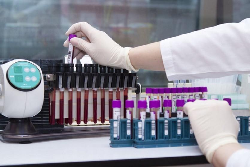 Қазақстанда өткен тәулікте 1430 адамнан коронавирус анықталды