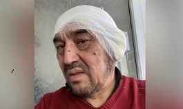 Екі құлағы үсіген: дәрігерлер видеодағы ер адамның денсаулығы туралы айтты (видео)