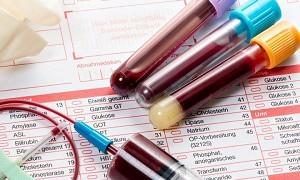 Врач опроверг популярное заблуждение о подготовке к анализу крови