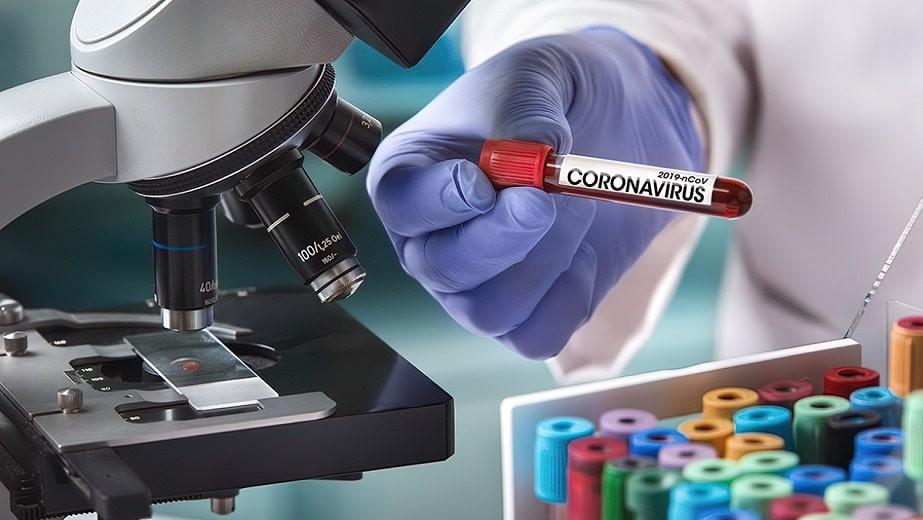 COVID-19 в Казахстане: 2 828 новых случаев за сутки