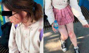 Жительницы Алматинской области избили подростка