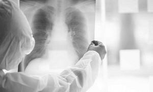 Коронавирус пневмониясынан бір тәулікте 6 науқас қайтыс болды