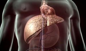 Гастроэнтеролог объяснил, как правильно питаться при циррозе печени