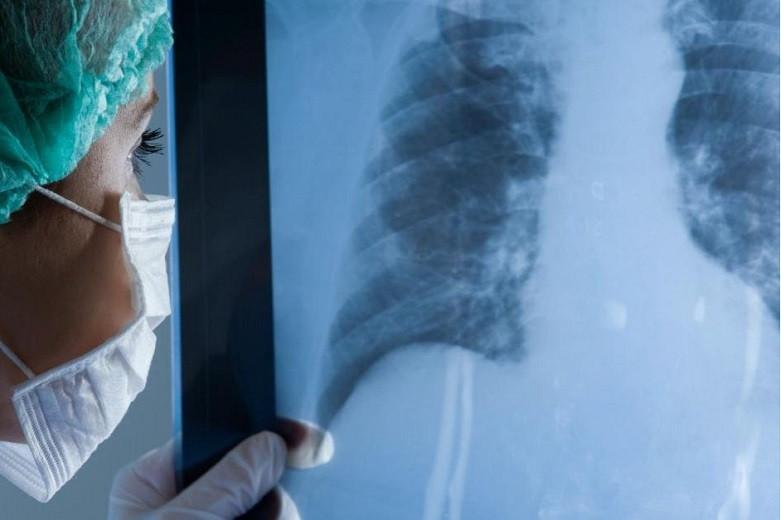 Бір тәулік ішінде 400-ге жуық адамнан пневмония анықталды