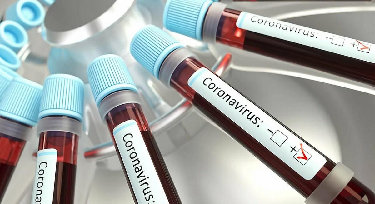 Коронавирус в Казахстане: 2 324 зараженных за сутки